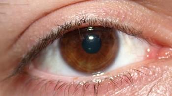 Expertos destacan la importancia de la detecci�n precoz del glaucoma para evitar la ceguera