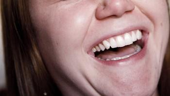 La forma en que se ríe una persona puede indicar que sufre depresión
