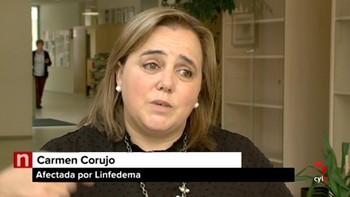 Conocemos a pacientes con linfedema, una enfermedad rara e incurable
