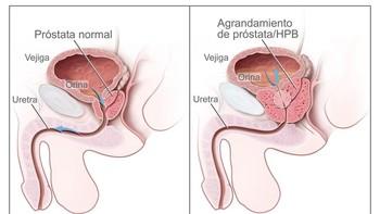 La IBSAL muestra en un estudio la eficacia de un nuevo tratamiento contra el cáncer de próstata
