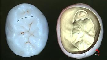 El primer estudio en 3D de los dientes hallados en la Sima de los Huesos tiene sello burgalés