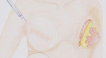 Llega a Espa�a un nuevo tratamiento que act�a como un 'Caballo de Troya' contra el c�ncer de mama