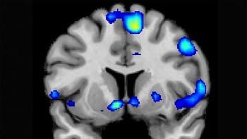Las experiencias religiosas también activan los circuitos de recompensa del cerebro